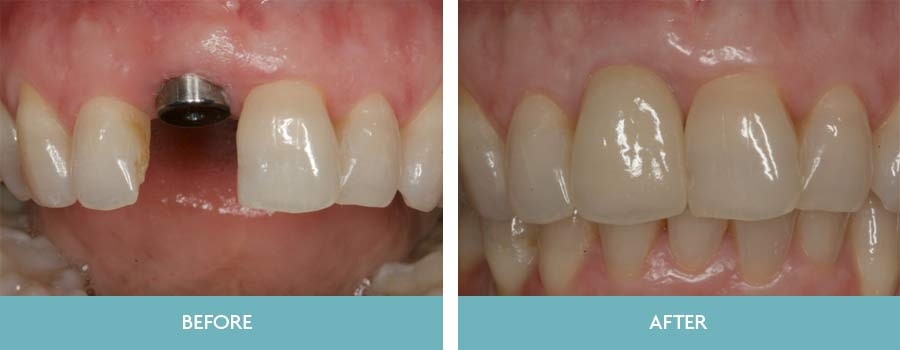 We Are A Leading Provider Of Dental Implants In South Dublin