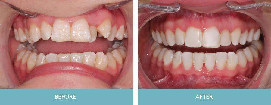 Orthodontics (Straight teeth) | Dundrum Dental Surgery