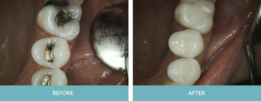 Dr  David Hefferon our Holistic Dentist provides a full